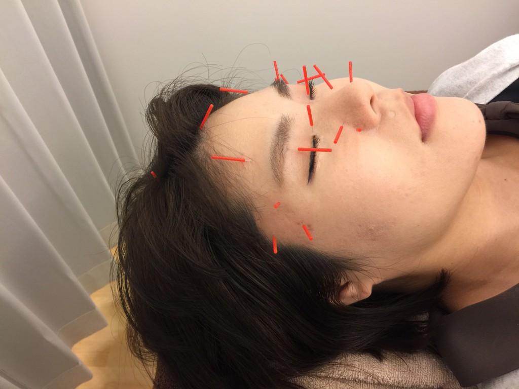 「花粉 鍼」の画像検索結果